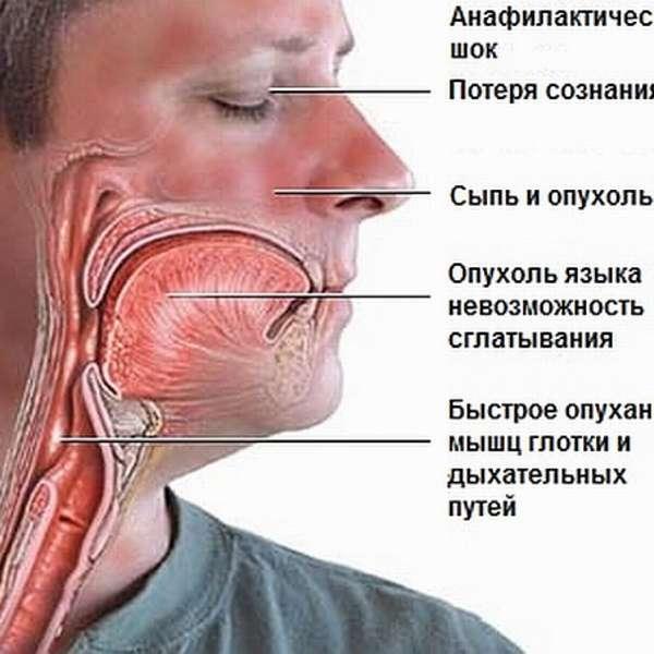Отек горла симптомы и лечение