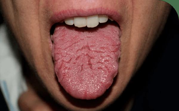 Лечение глоссита языка у взрослых и детей народными и аптечными препаратами, антибиотиками