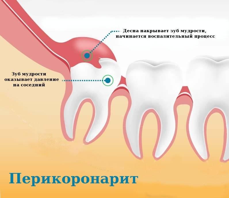 Боль при удалении зуба: почему и как долго болит?