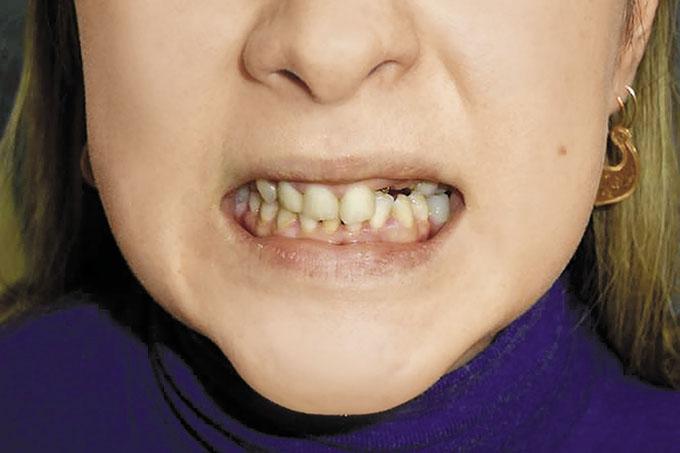 Отличие стоматолога-ортопеда от врача ортодонта