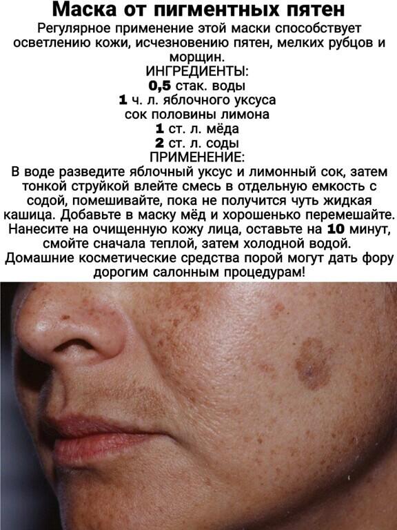 Средство от пигментных пятен на лице