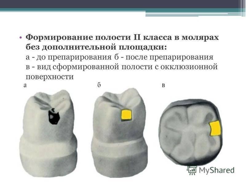 Кафедра стоматология детского возраста //// особенности препарирования кариозных полостей по блэку. - презентация