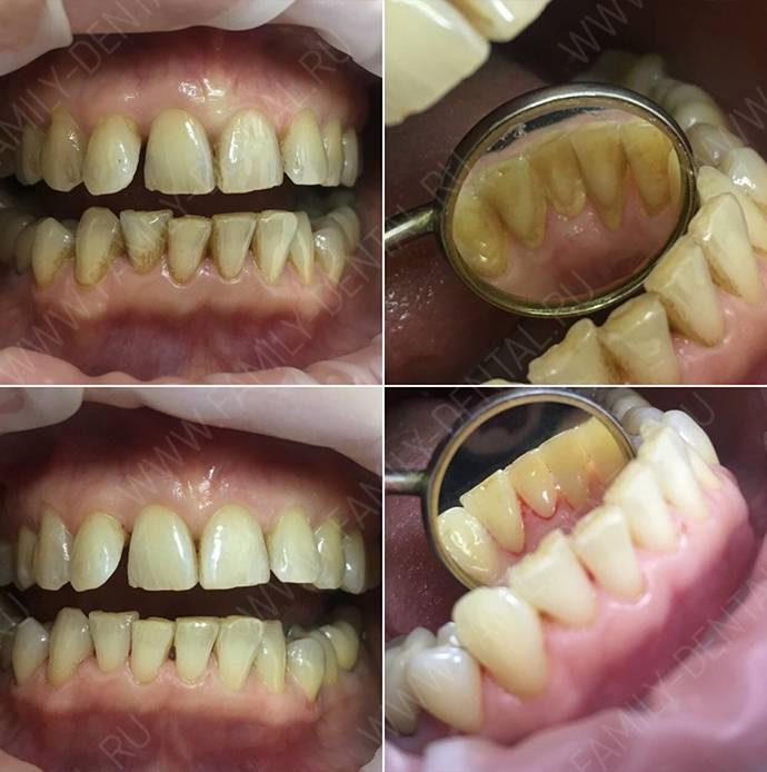 Что нельзя кушать после чистки зубов