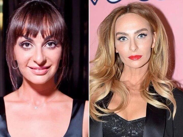 Екатерина варнава до и после пластики: лучше или хуже стало актрисе с новой внешностью?