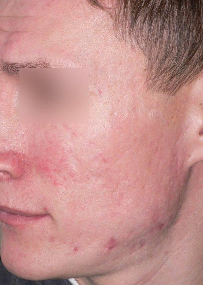 Лечение атрофических рубцов на лице