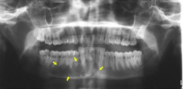 Диагностика, формы и лечение рака слизистой оболочки полости рта