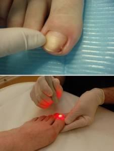 Цена и особенности удаления вросшего ногтя лазером