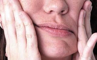 Парестезия после удаления зуба: сколько длится онемение, что делать
