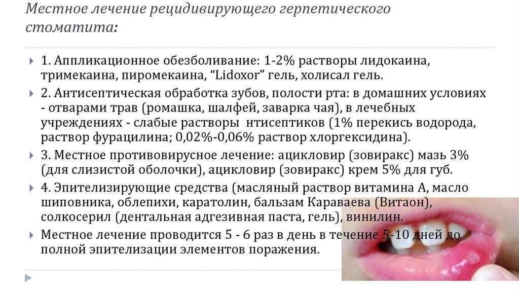 Герпесный (герпетический) стоматит у детей
