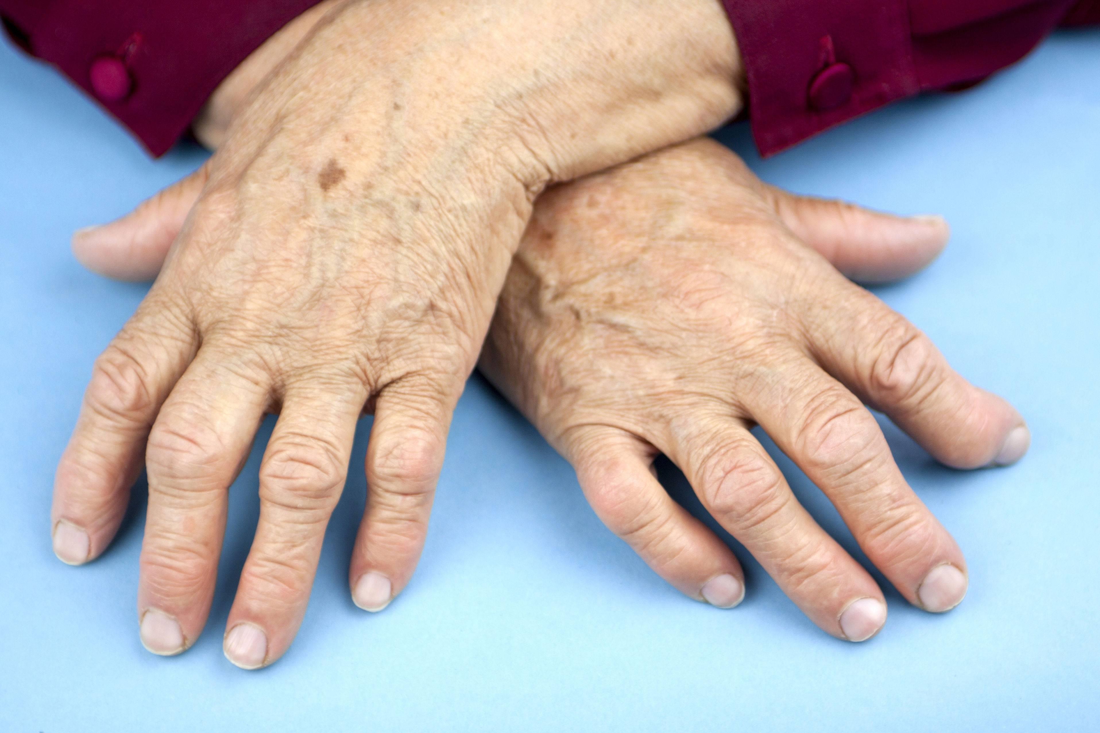 Ревматоидный артрит в картинах художников