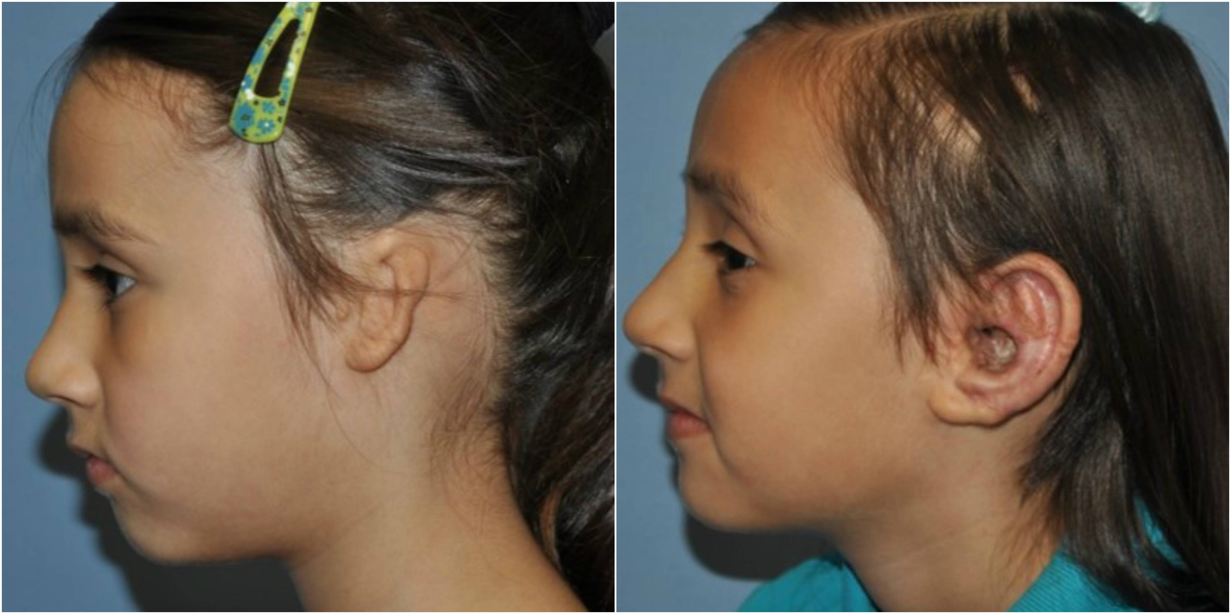 Хирургическое лечение атрезии наружного слухового прохода при аномалии развития уха