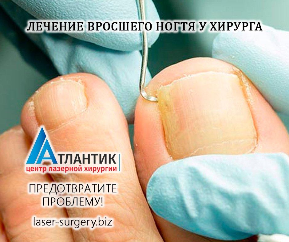 Как выполняют лазерное удаление вросшего ногтя