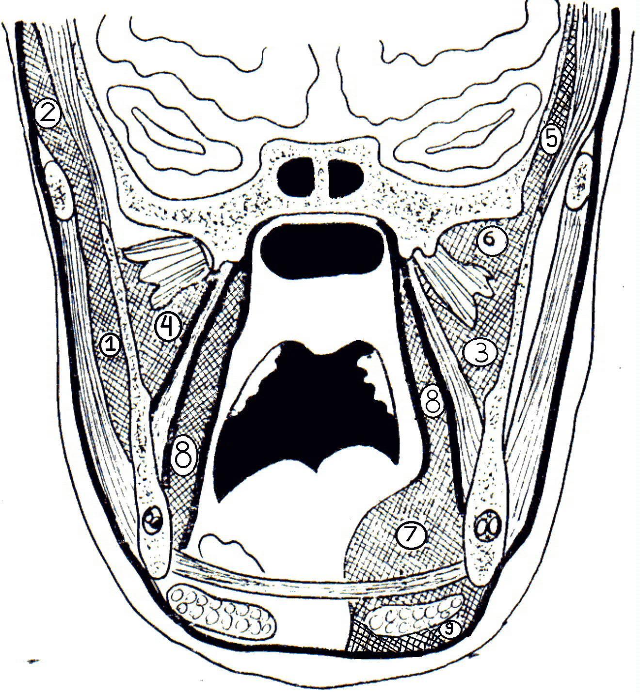 Флегмоны и абсцессы челюстно-лицевой области: главное — не довести до сепсиса