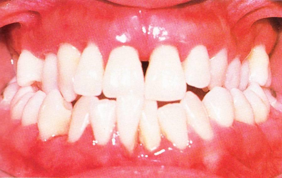 Гипертрофический гингивит: этиология, формы, лечение