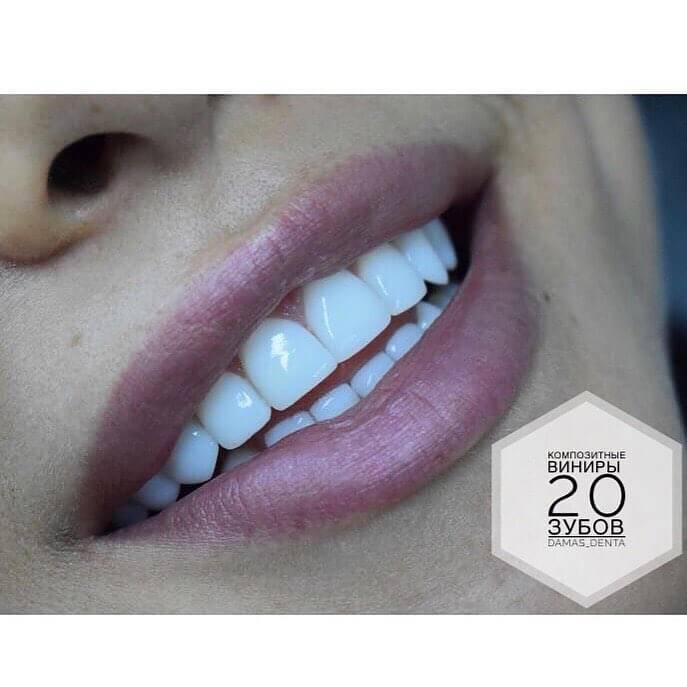 Полный обзор современных методов реставрации зубов: вкладки, виниры, люминиры