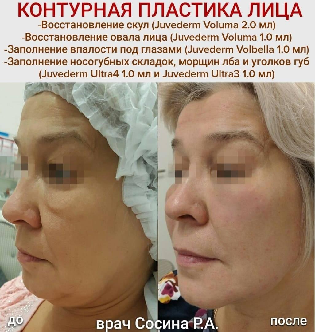 Какие препараты ювидерм выбрать для увеличения губ и коррекции носогубных складок