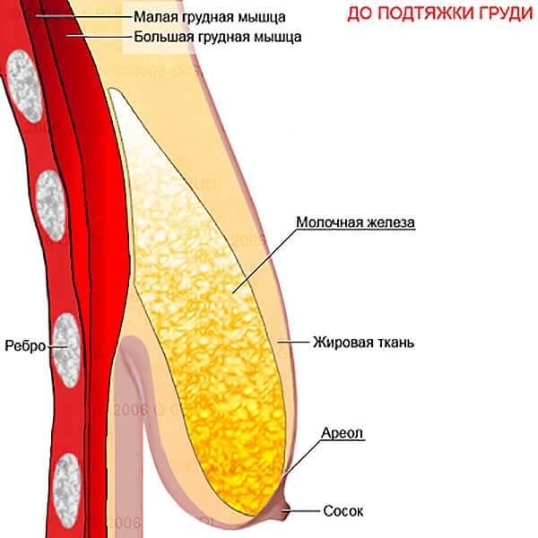 Как восстановить форму груди после периода кормления?