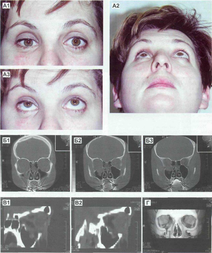 Реабилитация после перелома костей носа