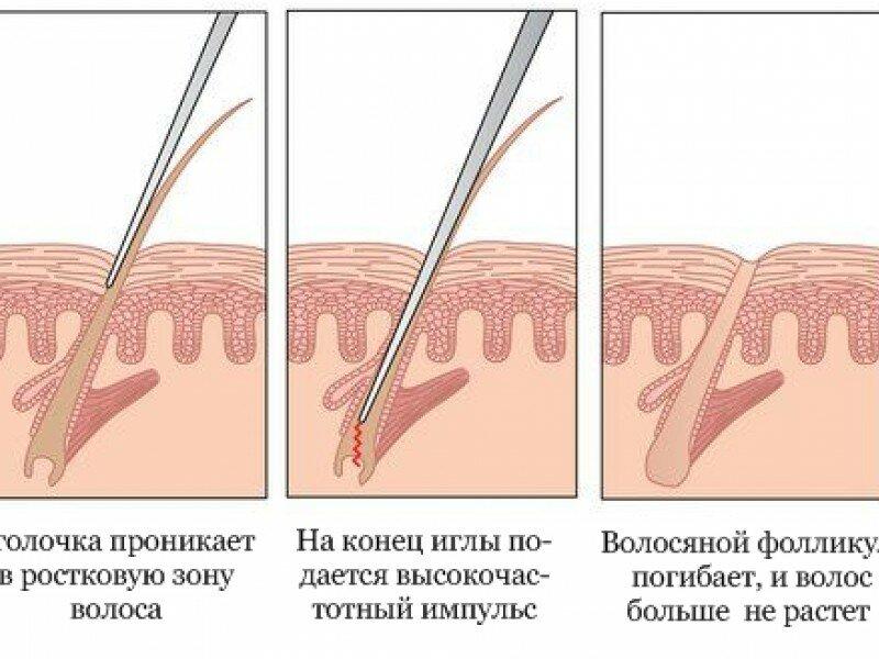 Как проходит и работает лазерная эпиляция: вся правда о процедуре удаления волос
