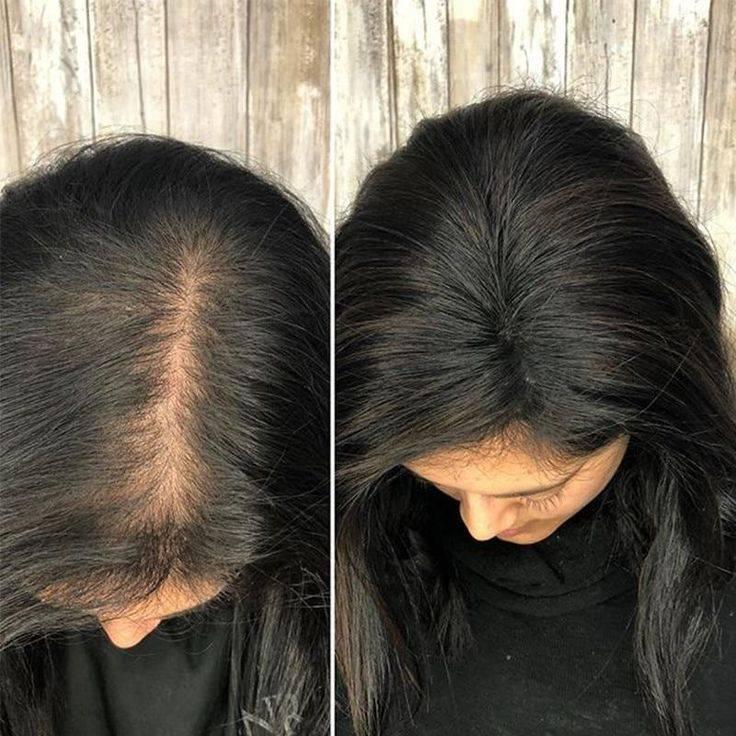 Сколько волос должно выпадать в день: норма выпадения волос