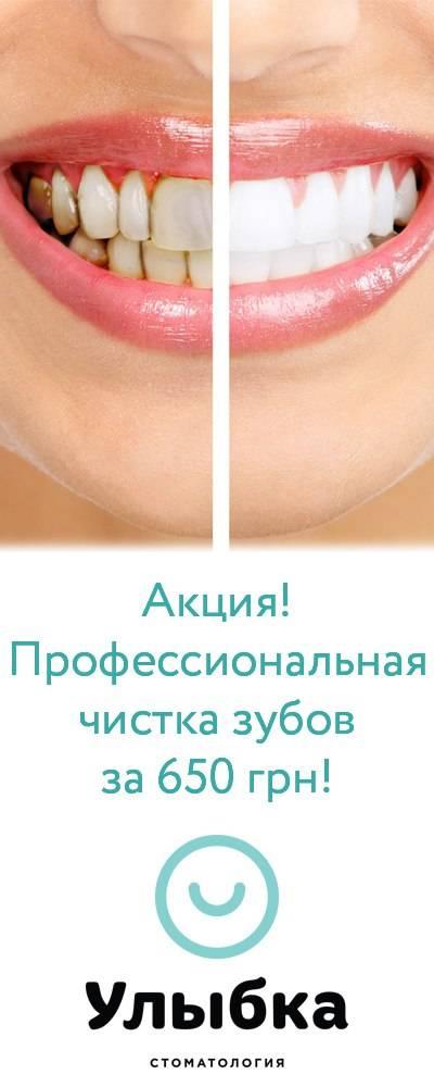 Топ 10 рекомендаций стоматолога после профессиональной чистки зубов
