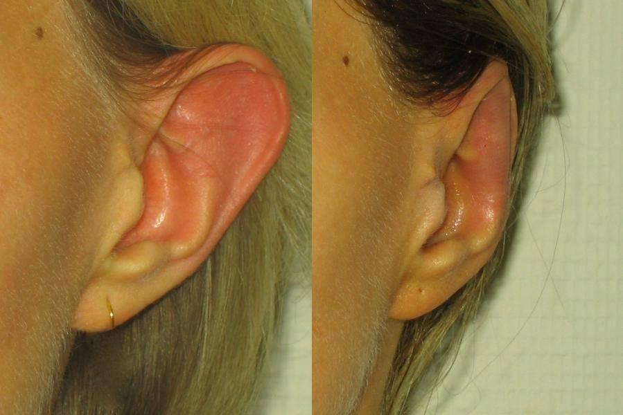Отсутствие ушей. что такое микротия. классификация деформаций ушных раковин