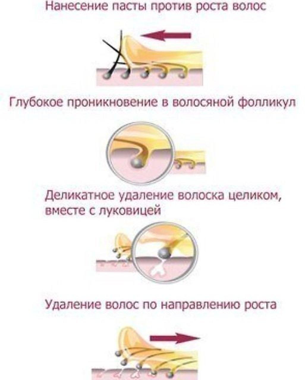 Что лучше: воск или шугаринг, отличие восковой депиляции, что больнее и эффективнее