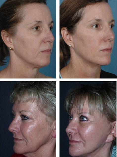 Преимущество элос-омоложения перед другими известными методами лифтинга кожи лица