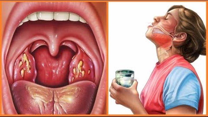 Запах изо рта при тонзиллите: диагностика и лечение патологии