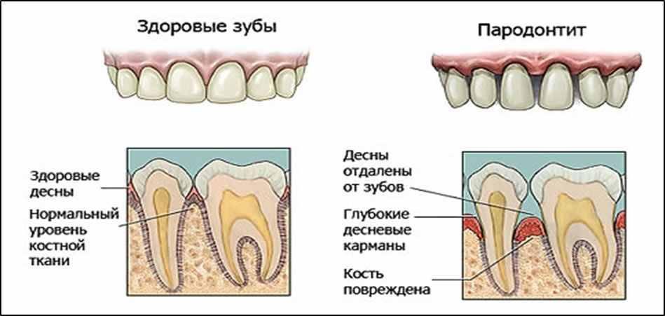 Чем лечить воспаление десен около зуба: фото, причины и симптомы