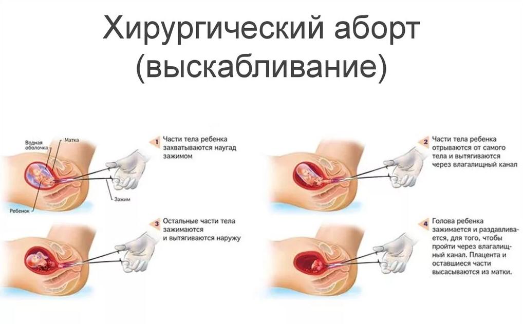 Когда приходят месячные после медикаментозного прерывания беременности, норма и патология