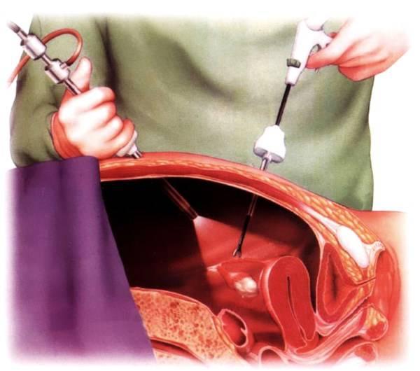 Подготовка к операции по удалению кисты яичника полостная операция