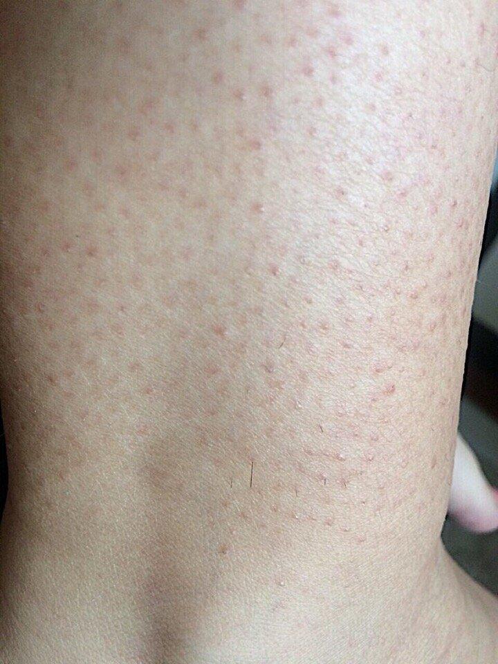 Гусиная кожа у человека