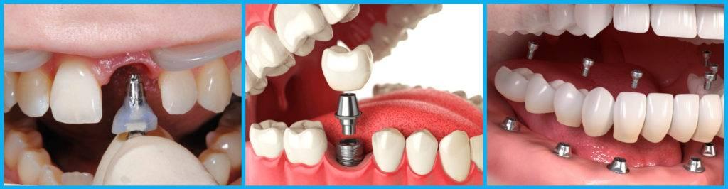 Можно ли нарастить сломанный зуб под корень. что делать если мертвый зуб сломался под корень
