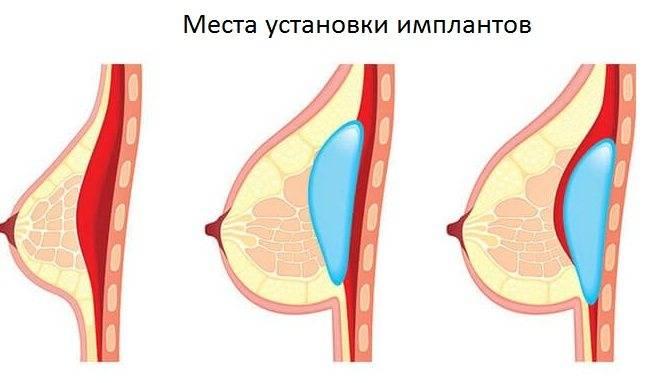 Липофилинг грудных желез: увеличение груди жиром, фото