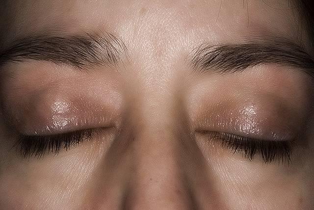 Шелушится нижнее веко глаза у взрослого
