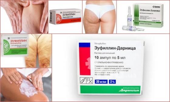 Карбокситерапия от целлюлита – описание, эффективность, противопоказания