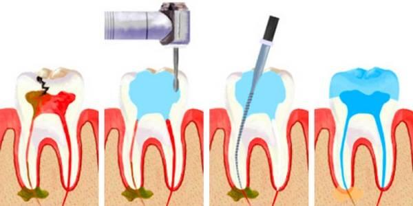 Почему болит зуб без нерва