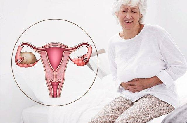 4 основных метода борьбы с эндометриозом