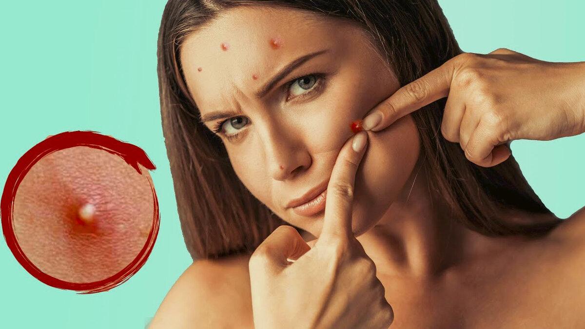 Как избавиться от прыщей и сделать кожу лица идеальной