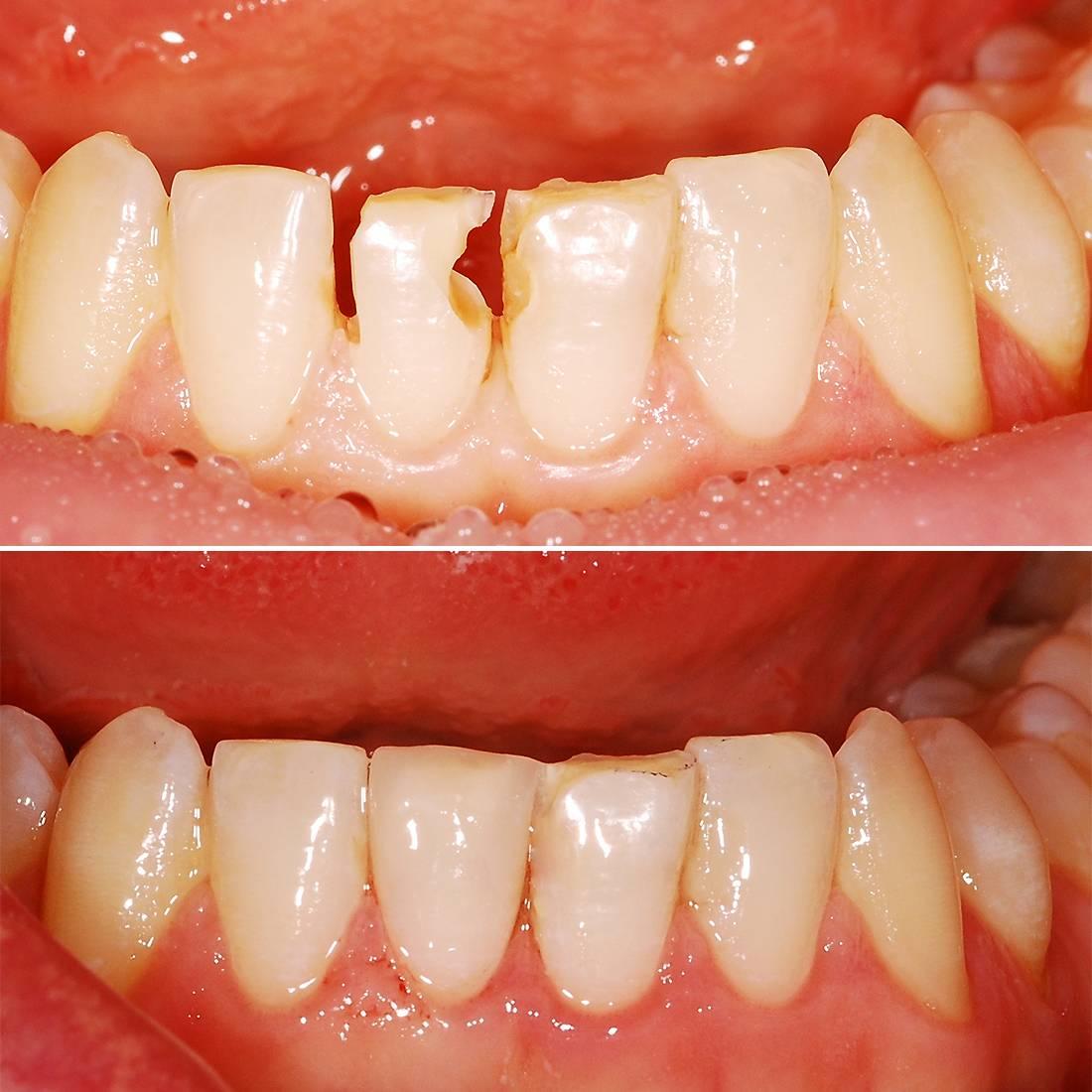 Восстановление зубов: виды и методы