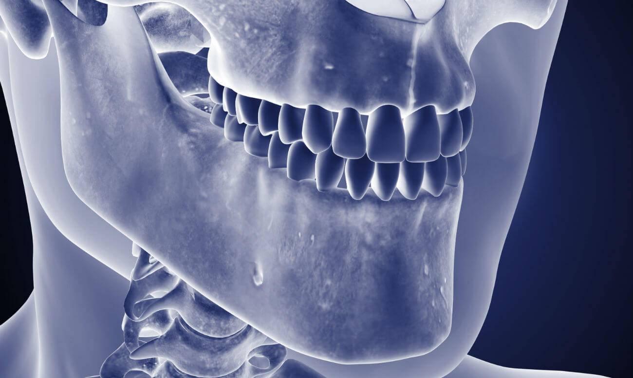 Остеонекроз челюсти – что это такое, симптомы, лечение и прогноз – ортодок