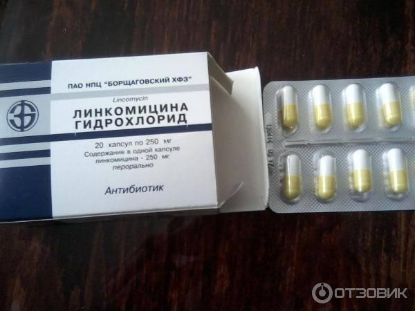 Антибиотики при воспалении десен, корней зубов под протезом, после удаления зуба, какие лучше