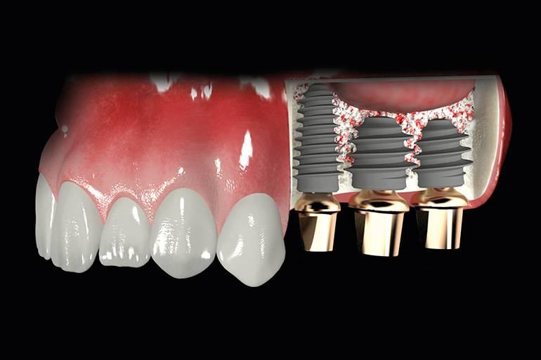 Можно ли провести имплантацию без наращивания кости