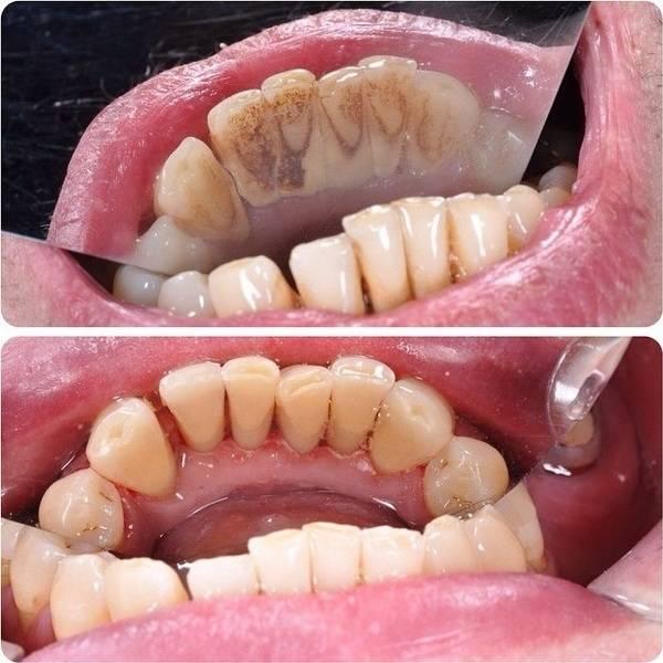 Профессиональная чистка зубов: важна или нет? ответы на часто задаваемые вопросы