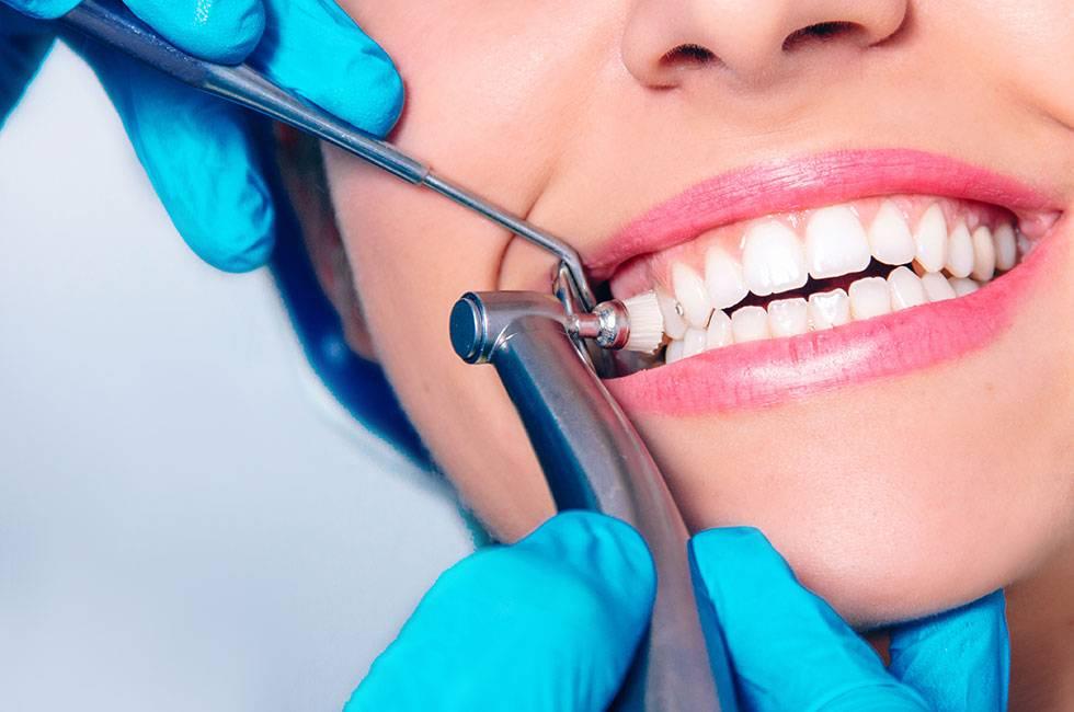 Профессиональная чистка зубов, виды, этапы и особенности