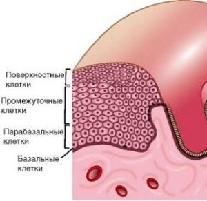 Гиперкератоз шейки матки