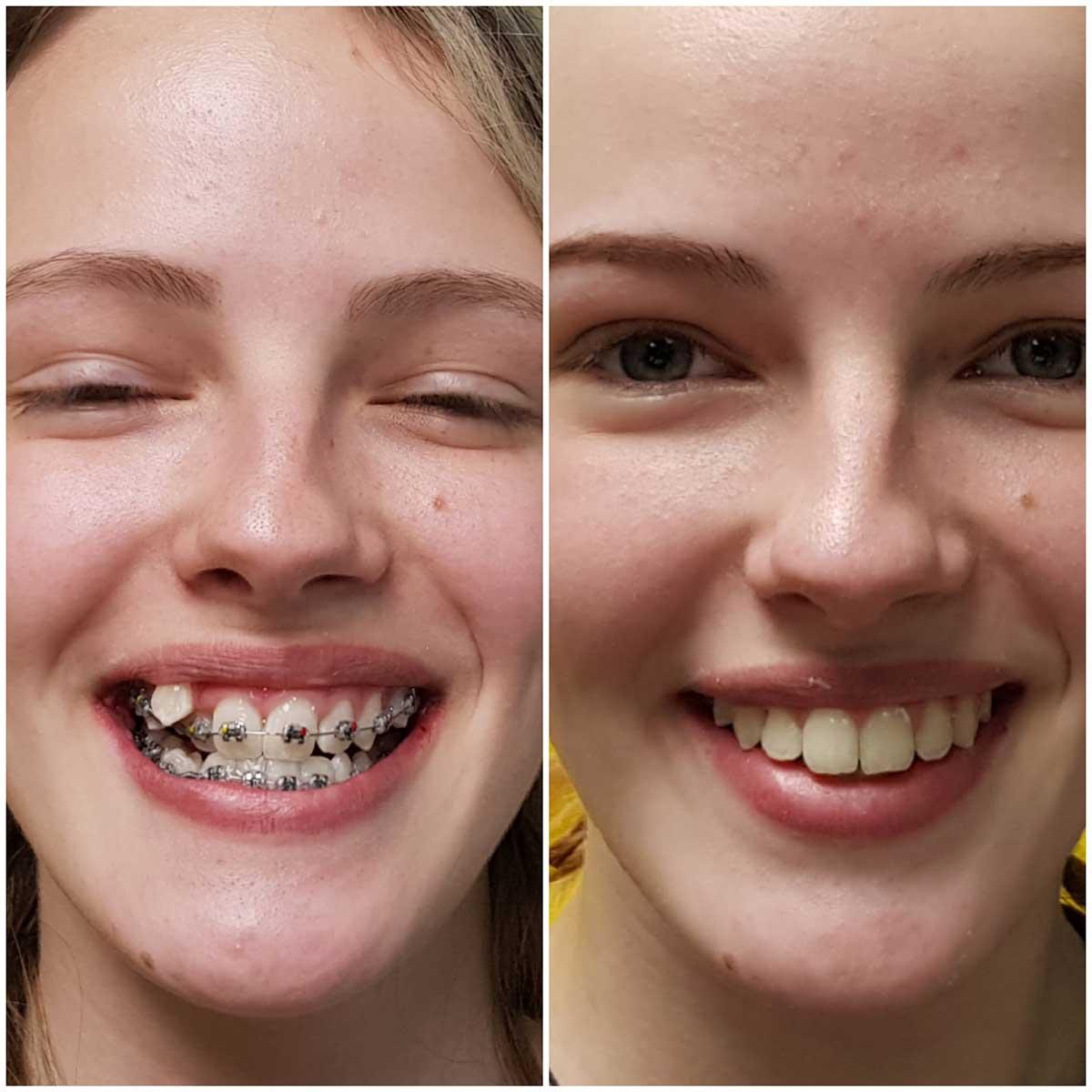 Путешествие за идеальной улыбкой: этапы лечения брекетами