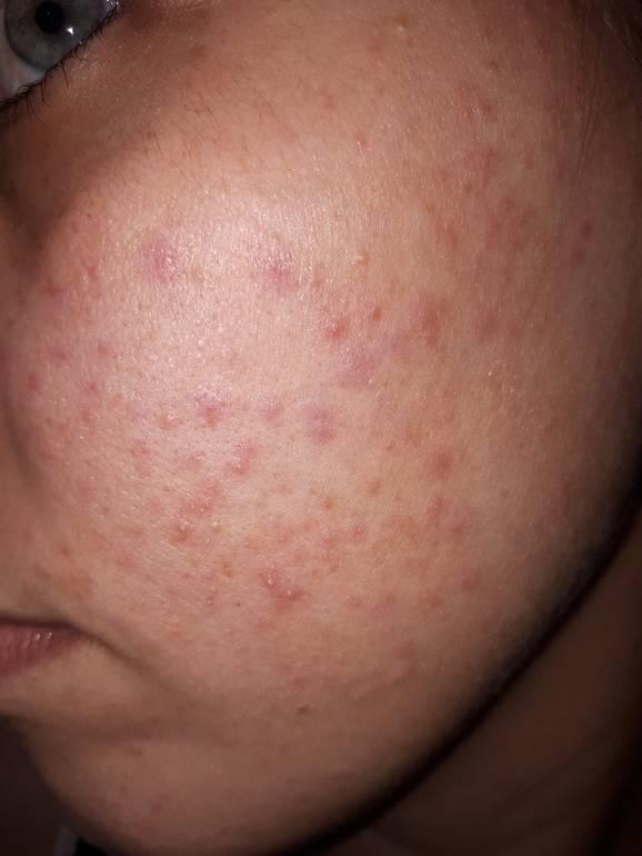 Прыщи и жирная кожа на лбу. причины появления прыщей на лбу у женщин