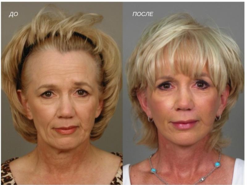 Рекомендации после ботокса лица – уход после процедуры